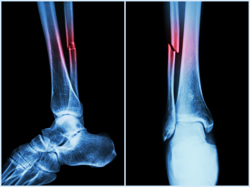 Broken Fibula Needs Time and Patience | Dr  Jesse Shaw